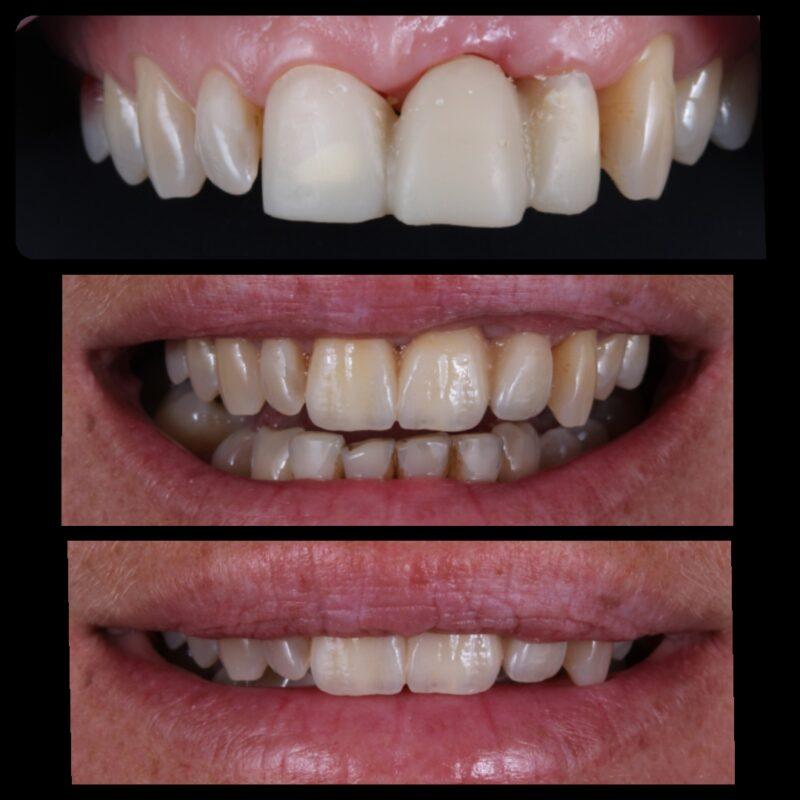 Протезирование зубов в стоматологии Обнинска Лазурит